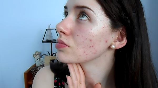 Melanie sở hữu làn da rất dễ bị kích ứng.