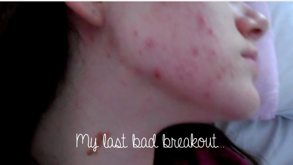 Mụn nổi dày đặc trên da cô.