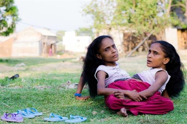 Cặp sinh đôi liền thân Ganga và Jamuna Mondal.(Ảnh: Internet)