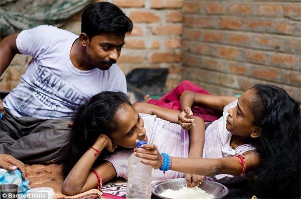 Thượng đế đã lấy đi của họ nhiều thứ, nhưng mang đến cho họ một điều tuyệt vời khác... (Ảnh: Barcroft India)