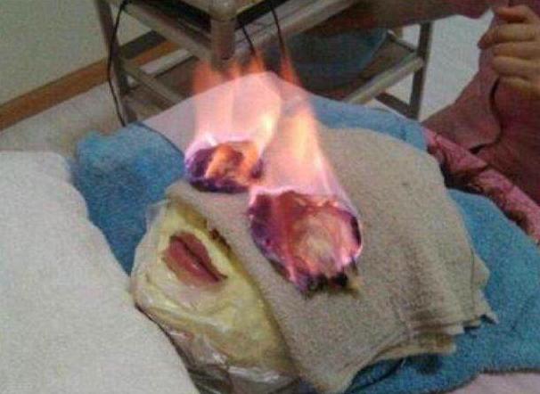 Chỉ cần một sơ xuất nhỏ, bệnh nhân sẽ bị bốc cháy ngay lập tức.