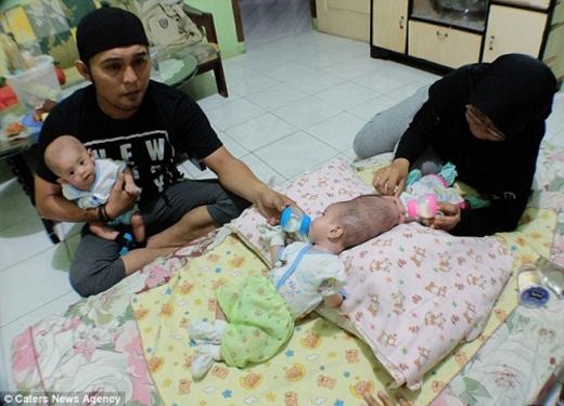 Bố mẹ hai bé gái rất mong con sớm được tách rời đầu