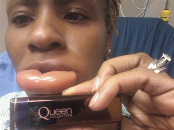 Theo chia sẻ của Lily, sau khi sử dụng thỏi son mới mua thuộc dòng Queen Collection của CoverGirl thì đôi môi của cô sưng vù lên xấp xỉ 10 lần ban đầu. Thậm chí, trông chúng như chỉ chờ để nổ tung.