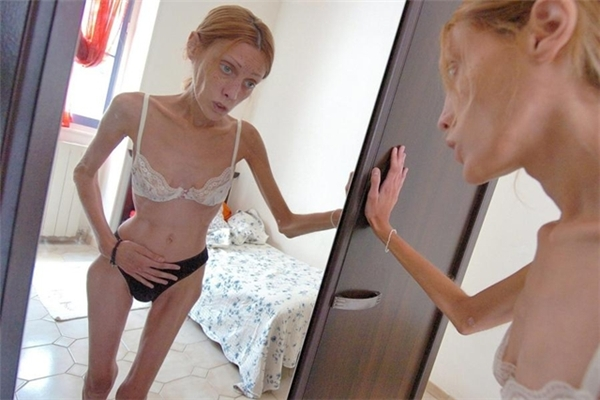 Cơ thể gầy guộc đến khó tin và ám ảnh của Isabelle Caro.