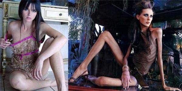 Ana trước và sau khi làm người mẫu.