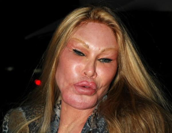 Khuôn mặt bà trông đã không còn giống... con người mấy nữa. (Ảnh: Internet)
