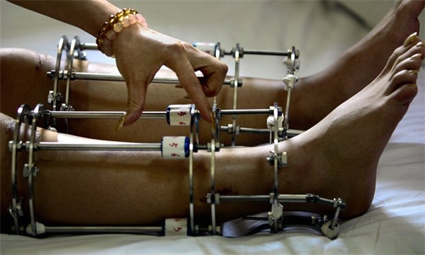 Khung đỡ chân của các bệnh nhân phẫu thuật thẩm mỹ.
