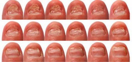 Khi phát hiện móng tay có hình lưỡi liềm: Bệnh nguy hiểm đang chờ bạn, hãy khám ngay!