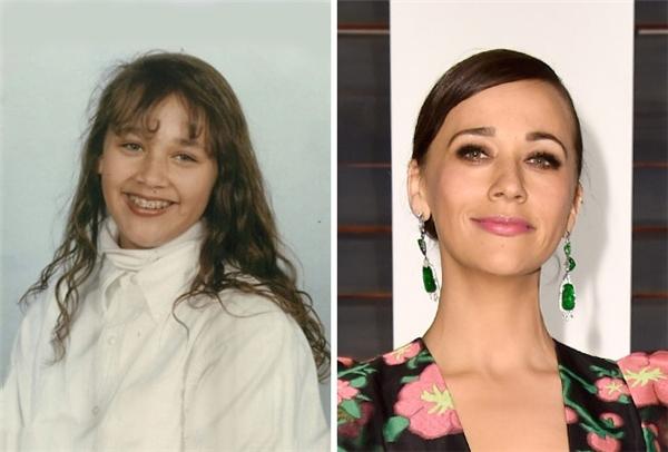 Ai dám nói hai tấm ảnh chụp cùng một người? Quả là sức mạnh của niềng răng. (Ảnh: iamrashidajones; Pascal Le Segretain)