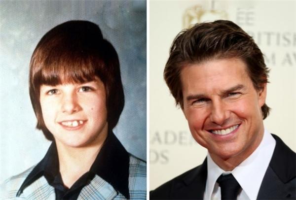 Một ví dụ nữa chứng minh sự thần kỳ của việc niềng răng và... thay đổi kiểu tóc. (Ảnh: Seth Poppel; Mike Marsland)