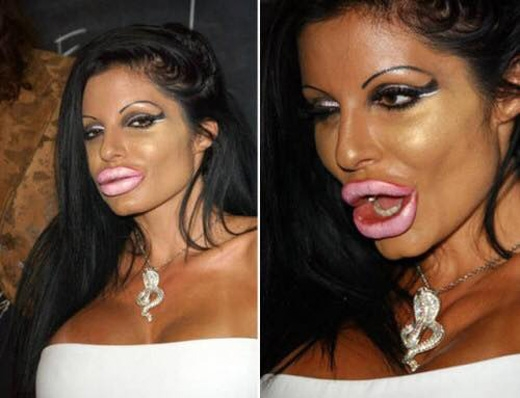 Có ai muốn sở hữu đôi môi 'quyến rũ' như thế này?