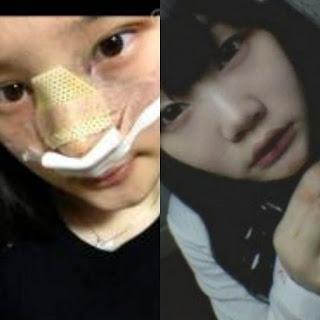 Jung Chaeyeon từng phẫu thuật mũi và mắt