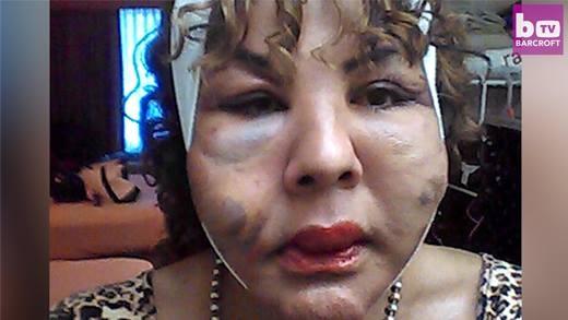 Người phụ nữ chuyển giới bị bơm xi măng và keo vào mặt cầu cứu