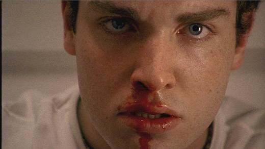 Hãy đến bác sĩ ngay khi phát hiện chảy máu bất thườngtrên cơ thể. (Ảnh: Internet)