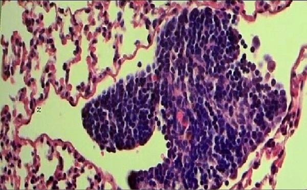 Có tới hơn 90% các bệnh nhân tử vong vì ung thư là do nguyên nhân di căn này.