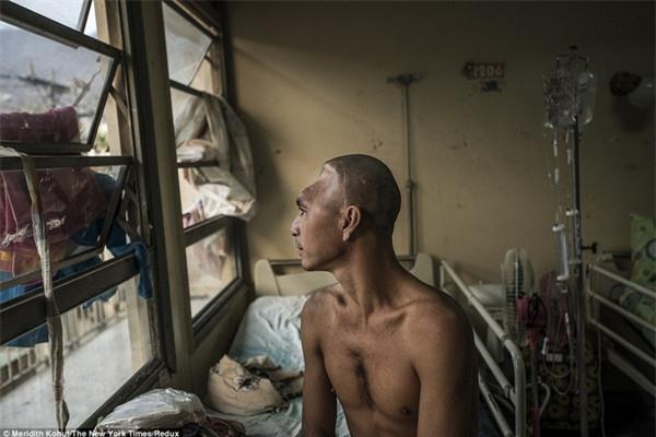 Anh Julio Rafael Parucho, người bị chấn thương nặng ở đầu, đã phải chờ đợi mòn mỏi một năm để thực hiện ca phẫu thuật hoàn thiện tiếp theo chỉ vì thiếu bác sĩ.