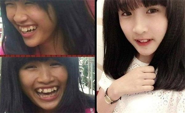 """Chỉ cần thay đổi góc chụp, cách cười cô gái với làn da đen nhẻm cùng hàm răng """"nhấp nhô"""" đã hóa """"hot girl"""" xinh như """"thiên thần"""".(Ảnh: Internet)"""