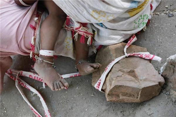 Bé Shivani bị cột khi đang để chân trần. (Ảnh: Internet)