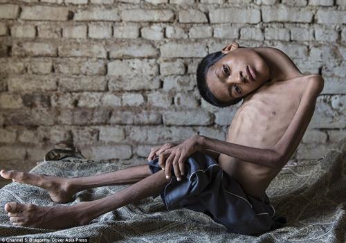 Từ khi sinh ra, cậu bé Mahendra Ahirwar đã không may mắn khi mắc phải một căn bệnh lạ khiến phần cổ và đầu của Mahendra không thể thẳng như người bình thường, thay vào đó là bị gập sâu tới 180 độ.