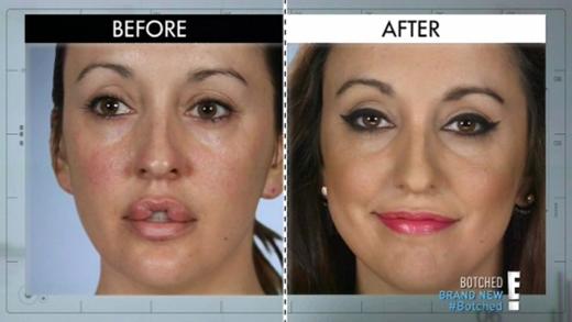 Keara trước và sau khi phẫu thuật lần 2.