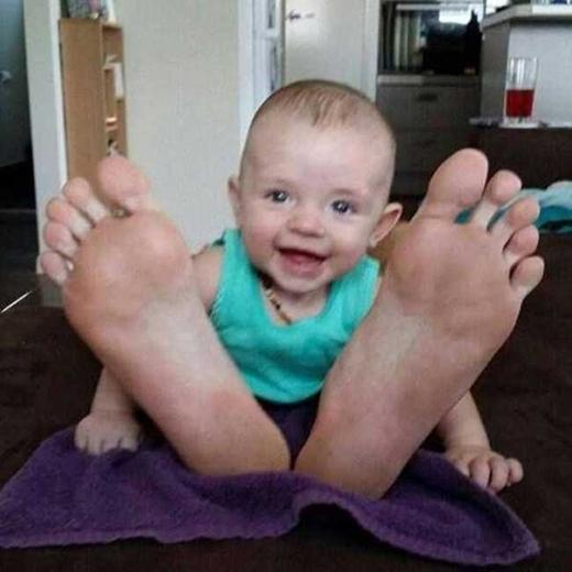"""Em bé và đôi bàn chân """"khổng lồ"""". (Ảnh: Internet)"""