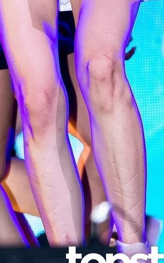 Sự thật kinh hoàng về vết thương trên đầu gối nữ thần tượng Kpop