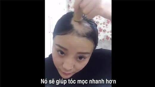 Cô gái trọc đầu vì ăn bắp trở lại với clip hướng dẫn... giúp mọc tóc