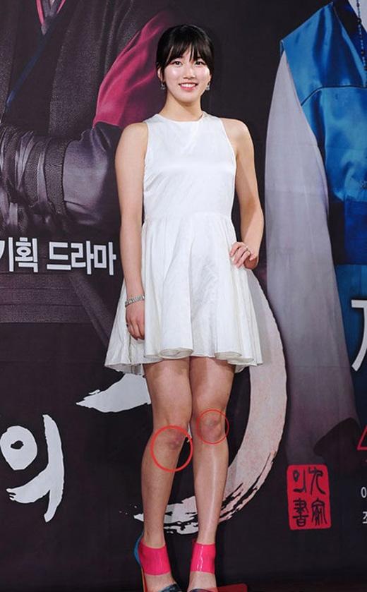 Suzy khiến fan phát hoảng với chi chít sẹo trên đôi chân của mình.(Ảnh: Internet)