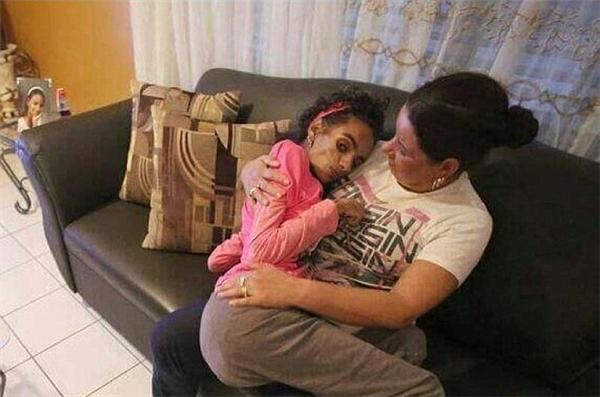 Perez nằm trong vòng tay mẹ mình sau khi bị tổn thương não nghiêm trọng.