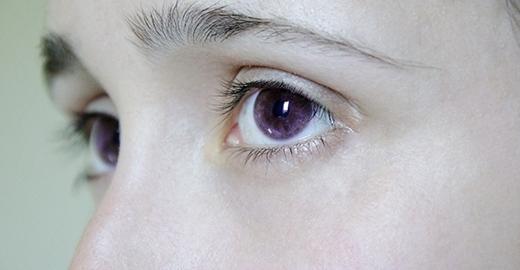 Bạn đã từng thấy ai với đôi mắt tím như thế này hay chưa?