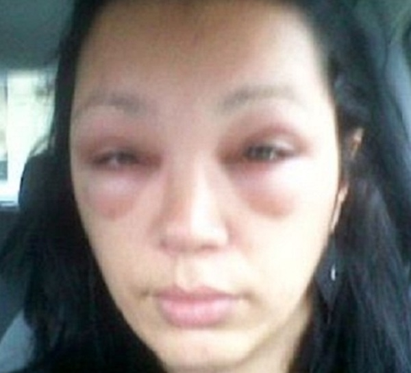 Chỉ vì kích ứng với thuốc nhuộm tóc mà mắt của chị gái này đã phải lãnh hậu quả.(Ảnh: Internet)