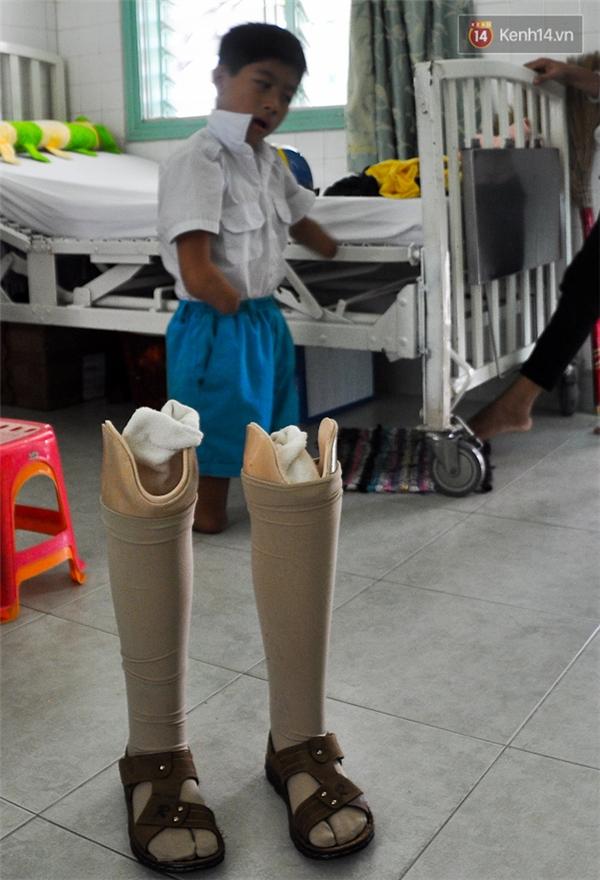 Mặc dù có đôi chân giả nhưng khi lắp vào bé Lâm vẫn cảm thấy đau ở mỏm cụt.