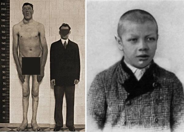 Adam Rainer sinh năm 1899 tại Graz, Áo là người nắm giữ kỉlục người thấp nhất và cao nhất thế giới. Khi 19 tuổi, Rainer đã được kiểm tra sức khỏe và xác nhận tình trạng cơ thể kém phát triển so với tuổi nên chỉ cao 1,4m. Tuy nhiên, đến năm 1930, Adam Rainer đã cao 2m. Sự phát triển chiều cao đột ngột của Rainer là do một khối u trong tuyến yên đã kích thích sản sinh ra nhiều hoocmon sinh trưởng. Mặc dù đã cắt bỏ khối u nhưng vẫn không ngăn được sự phát triển chiều cao của Rainer. Cuối cùng, Rainer phải nằm liệt giường và qua đời năm 1950 với chiều cao lên tới 2,34m.