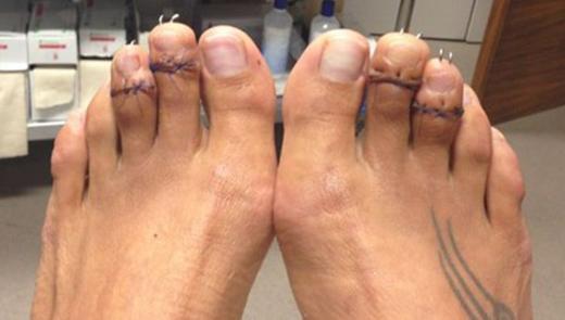 Chân của Paulina sau khi được phẫu thuật cưa ngắn.