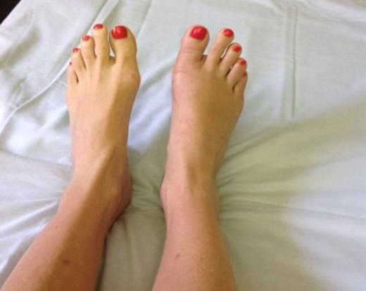 Đôi chân duyên dáng hơn sau phẫu thuật.