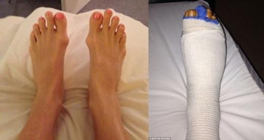 Trước và sau phẫu thuật.
