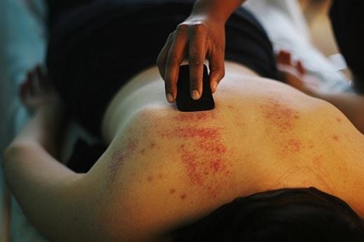 Phương pháp này giúp giảm đau và giải tỏa căng thẳng.
