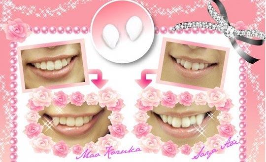 """Theo quan niệm của các cô gái Nhật, để được xem là """"Kawaii"""" - dễ thương, bạn cần phải có hai chiếc răng khểnh dễ thương. Vì vậy,tại đây đã rao bán những chiếc răng giả cho những nàng sinh ra không có được vốn tự nhiên ấy. (Ảnh: Internet)"""