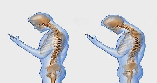 Tác hại kinh hoàng của việc thường xuyên cúi đầu dùng điện thoại