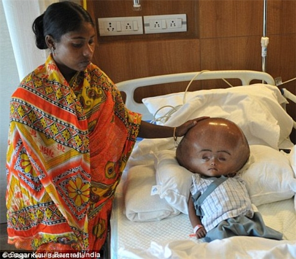 Chỉ mới 3 tuổi nhưng Roona đã phải nhập viện suốt 105 ngày và trải qua hàng loạt các cuộc phẫu thuật để rút khoảng 10l dịch trong não ra, đồng thời tái cấu trúc lại hộp sọ.