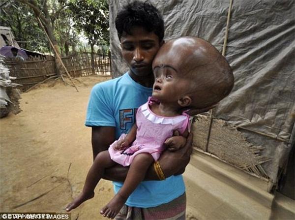 Nhẹ lòng cô bé có đầu nặng gần 10kg sống sót màu nhiệm