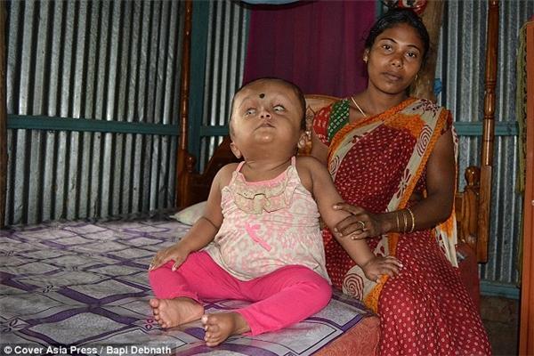 Đầu của cô bé đã nhỏ đi được phân nửa và bé đã có thể sinh hoạt tương đối bình thường.
