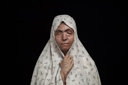 Masoumeh Matai (32 tuổi) bị mất hai mắt sau vụ tấn công axit do bố chồng gây ra. Người bố chồng cũ của cô đã tạt axit cô vì cô từ chối chấp nhận việc quay trở về chung sống cùng chồng cũ. (Ảnh: Internet)