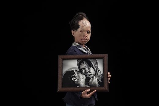 Trong ảnh làRaana Mehri (29 tuổi) bên tấm hình chụp cùng mẹ làSomayeh vớihậu quả tàn khốcdo chính tay cha cô gây ra. Mặc dù đã trải qua nhiều cuộc phẫu thuật, mẹ cô đãqua đời sau đó không lâu, còn một mắt củacô đã mãi mãi không phục hồi.(Ảnh: Internet)