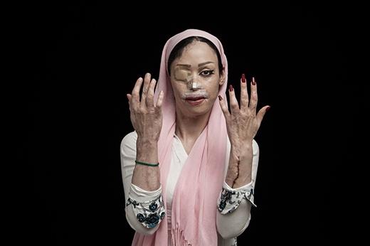 Bốn năm trước, Shirin Mohamadi (18 tuổi)từ chối một lời câu hôn và bịkia đã tấn công cô bằng axit. Cô đã trải qua nhiều lần phẫu thuật để có thể lấy lại cuộc sống bình thường như hiện nay.Mắtphải, mũi, miệng và một bên tai bị tổn thương nghiêm trọng. (Ảnh: Internet)