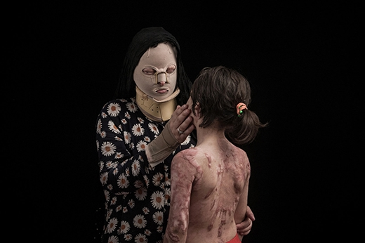 Hai mẹ conRaana Por Amrai (38 tuổi) và Fatemeh Qalandari (8 tuổi) bị chính anh rể của Amrai tạtaxit với lí do anh này nghi ngờ cô là nguyên nhân khiến anh li dị vợ.Gương mặt, bàn tay, mắt và cổ của Amraibị bỏng nặng. Lưng và cánh tay của con gái cô cũng nhận nhận vết sẹo xấu xí sau vụ tấn công đó. (Ảnh: Internet)