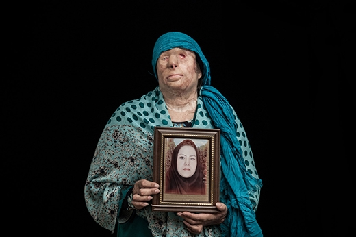 Zivar Parvin (37 tuổi) bên di ảnh của con gái sau khi cả haibị anh chồngtấn công axit trong lúc ngủ.Parvin mất đi một mất, khuôn mặt bị hủy hoại hoàn toàn. Còn con gái cô đãqua đờisau hai tuần chống chọi với đau đớn. (Ảnh: Internet)