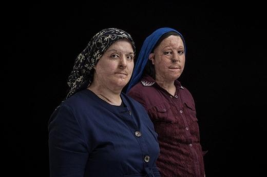 Trong lúc ngủ,Maryam Zamani (38 tuổi)và con gáiđãbị chị dâu mìnhtấn công axit. (Ảnh: Internet)