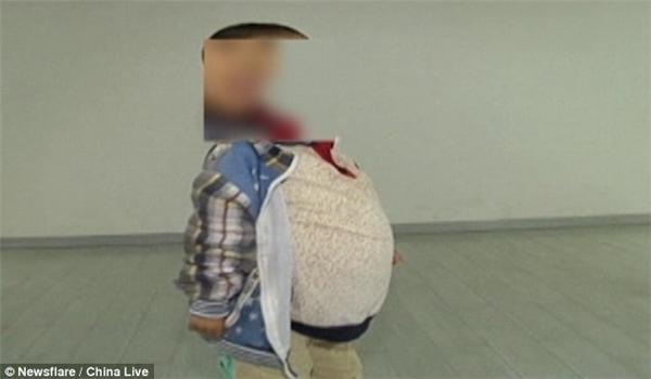 Chiếc bụng to khiến cậu bé rất khó khăn trong đi lại.