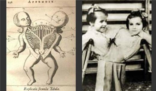 Những cặp song sinh bị khâu vào nhau trong thí nghiệm. (Ảnh: Internet)